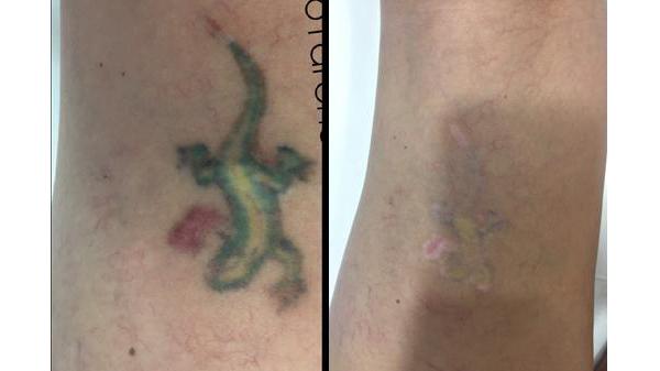 Лазерное удаление тату до и после
