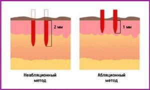 Абляционное и неабляционное лазерное омоложение
