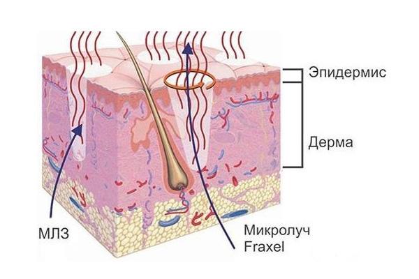 Влияние лазера на кожу