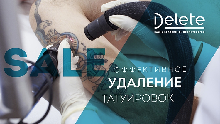Скидка на удалене татуировок