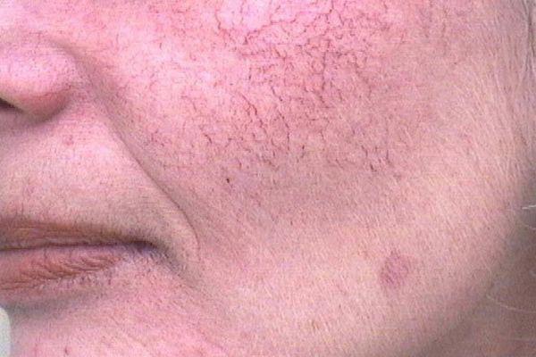 Удаление купероза