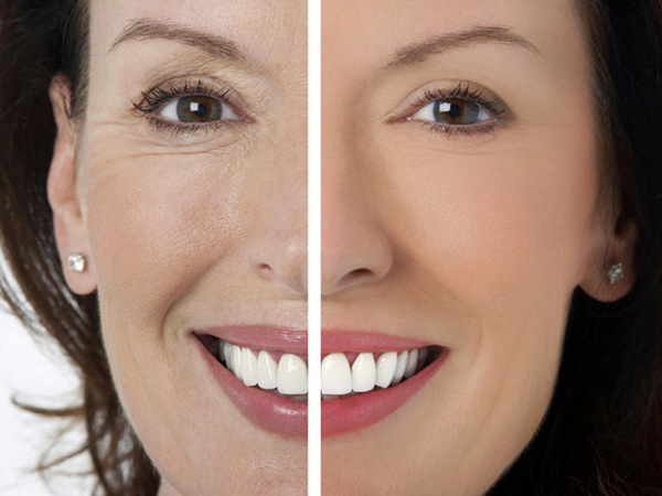 Удалить морщины с лица