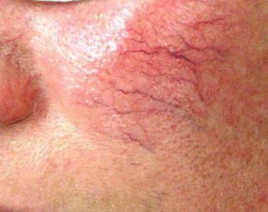 Удаление сосудов на лице