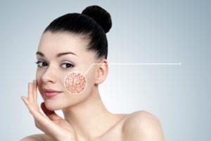 лечение купероза на лице лазером