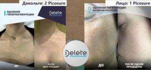 До и после удаления пигментации