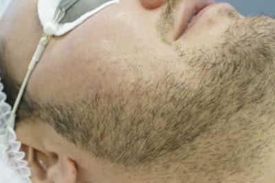 Лазерное моделирование бороды - 1