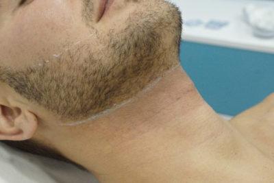 Лазерное моделирование бороды - 2
