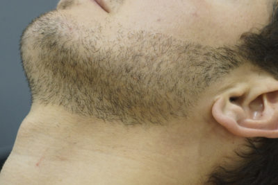Лазерное моделирование бороды - 3