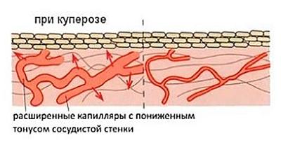 Сосуды при куперозе