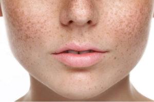 Удаление пигментации кожи