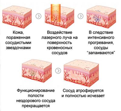 Лазерное лечение сосудов