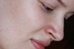 Сосуды на крыльях носа